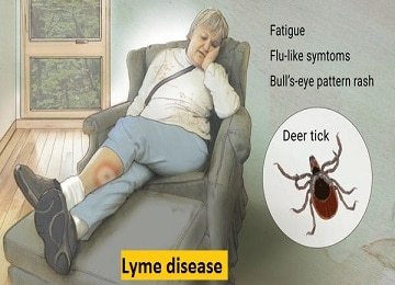 pests and diseases lyme-disease
